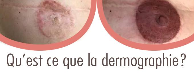 Qu'est ce que la dermographie?